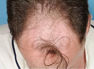 Повышенный гормон ттг выпадение волос
