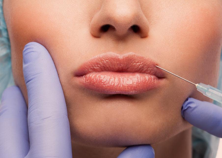 Как вывести гиалуроновую кислоту из губ
