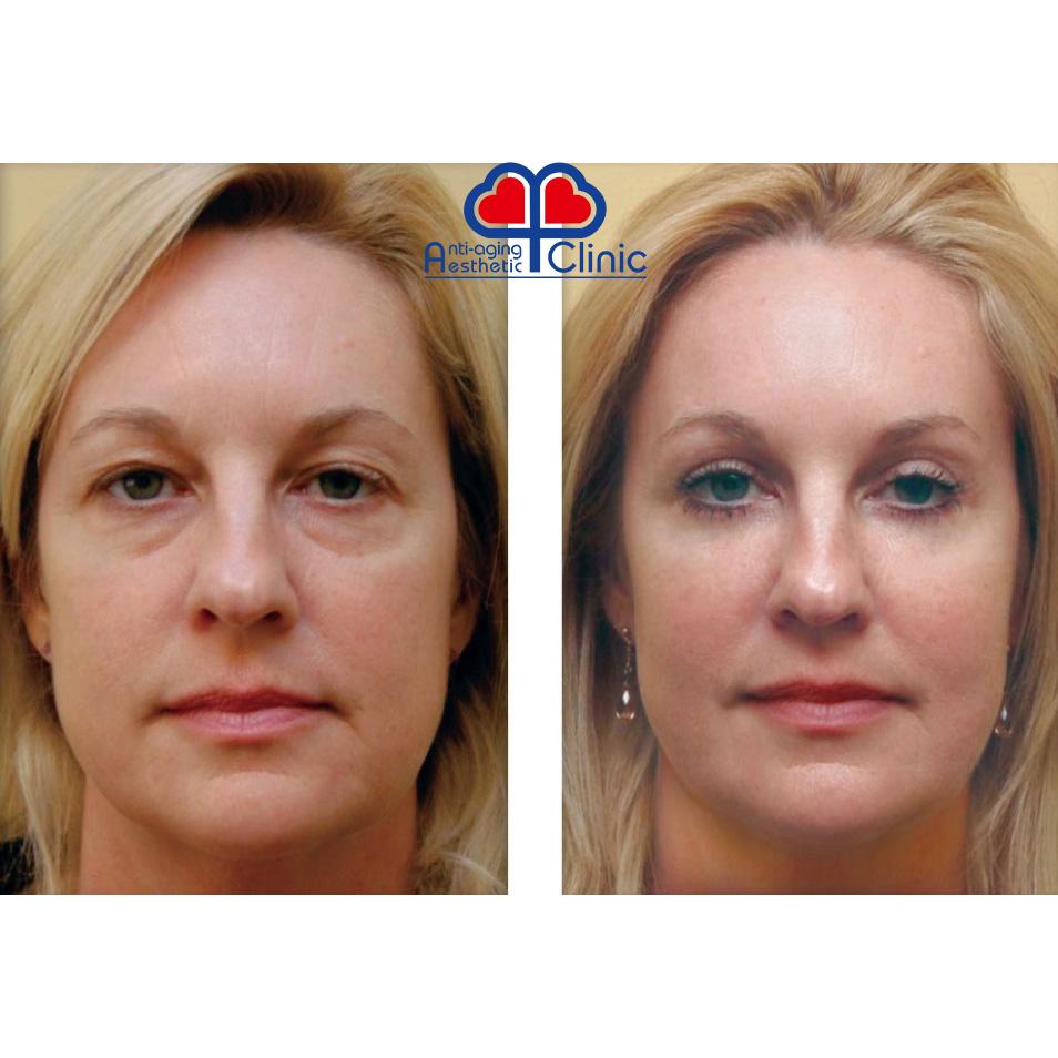 изоджей для лица до и после фото