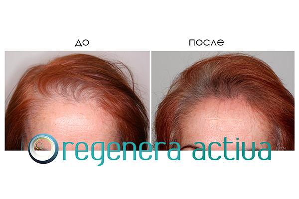 regenera-activa-result-2.jpg