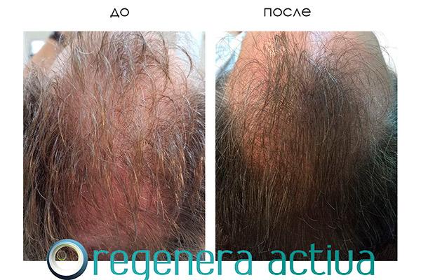 regenera-activa-result-1.jpg